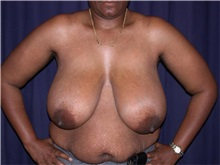 Breast Reduction Before Photo by Gary Culbertson, MD, FACS; Sumter, SC - Case 33346