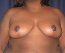 Breast Reduction After Photo by Gary Culbertson, MD, FACS; Sumter, SC - Case 33451