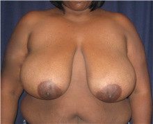 Breast Reduction Before Photo by Gary Culbertson, MD, FACS; Sumter, SC - Case 33451