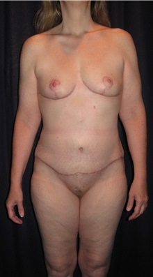 Tummy Tuck After Photo by Gary Culbertson, MD, FACS; Sumter, SC - Case 33458