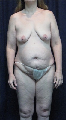 Tummy Tuck Before Photo by Gary Culbertson, MD, FACS; Sumter, SC - Case 33458