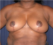 Breast Reduction After Photo by Gary Culbertson, MD, FACS; Sumter, SC - Case 33460