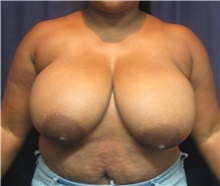 Breast Reduction Before Photo by Gary Culbertson, MD, FACS; Sumter, SC - Case 33460