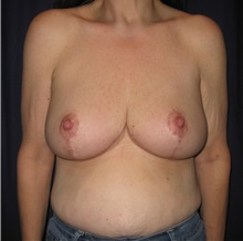 Breast Reduction After Photo by Gary Culbertson, MD, FACS; Sumter, SC - Case 33463