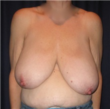 Breast Reduction Before Photo by Gary Culbertson, MD, FACS; Sumter, SC - Case 33463