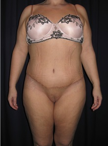 Body Contouring After Photo by Gary Culbertson, MD, FACS; Sumter, SC - Case 33464