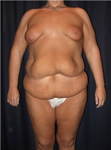 Body Contouring Before Photo by Gary Culbertson, MD, FACS; Sumter, SC - Case 33464