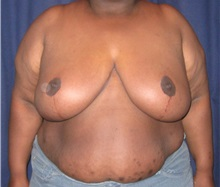Breast Reduction After Photo by Gary Culbertson, MD, FACS; Sumter, SC - Case 33465