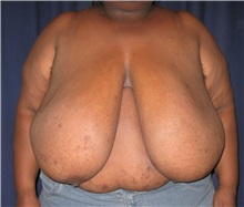 Breast Reduction Before Photo by Gary Culbertson, MD, FACS; Sumter, SC - Case 33465