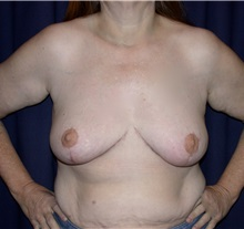 Breast Lift After Photo by Gary Culbertson, MD, FACS; Sumter, SC - Case 33467