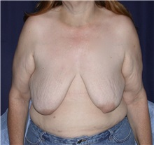 Breast Lift Before Photo by Gary Culbertson, MD, FACS; Sumter, SC - Case 33467