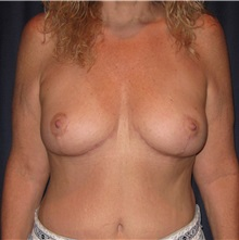 Body Lift After Photo by Gary Culbertson, MD, FACS; Sumter, SC - Case 33468