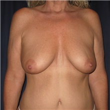 Body Lift Before Photo by Gary Culbertson, MD, FACS; Sumter, SC - Case 33468