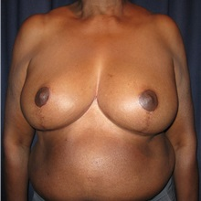 Breast Reduction After Photo by Gary Culbertson, MD, FACS; Sumter, SC - Case 33469