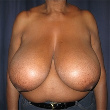 Breast Reduction Before Photo by Gary Culbertson, MD, FACS; Sumter, SC - Case 33469