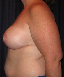 Breast Lift After Photo by Gary Culbertson, MD, FACS; Sumter, SC - Case 33472