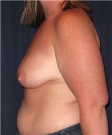 Breast Lift Before Photo by Gary Culbertson, MD, FACS; Sumter, SC - Case 33472