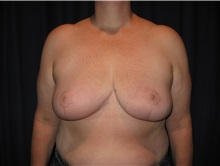 Breast Reduction After Photo by Gary Culbertson, MD, FACS; Sumter, SC - Case 33474