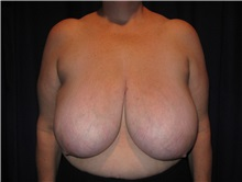 Breast Reduction Before Photo by Gary Culbertson, MD, FACS; Sumter, SC - Case 33474