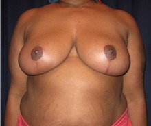 Breast Reduction After Photo by Gary Culbertson, MD, FACS; Sumter, SC - Case 33475