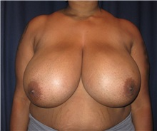 Breast Reduction Before Photo by Gary Culbertson, MD, FACS; Sumter, SC - Case 33475