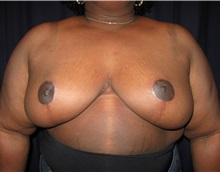 Breast Reduction After Photo by Gary Culbertson, MD, FACS; Sumter, SC - Case 33476