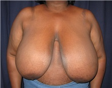 Breast Reduction Before Photo by Gary Culbertson, MD, FACS; Sumter, SC - Case 33476