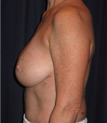 Breast Implant Removal After Photo by Gary Culbertson, MD, FACS; Sumter, SC - Case 33479