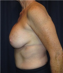 Breast Implant Removal Before Photo by Gary Culbertson, MD, FACS; Sumter, SC - Case 33479