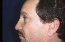Eyelid Surgery Picture