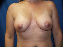 Breast Lift After Photo by Paul Ringelman, MD; Towson, MD - Case 8279