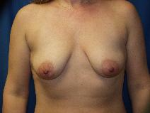 Breast Lift Before Photo by Paul Ringelman, MD; Towson, MD - Case 8279
