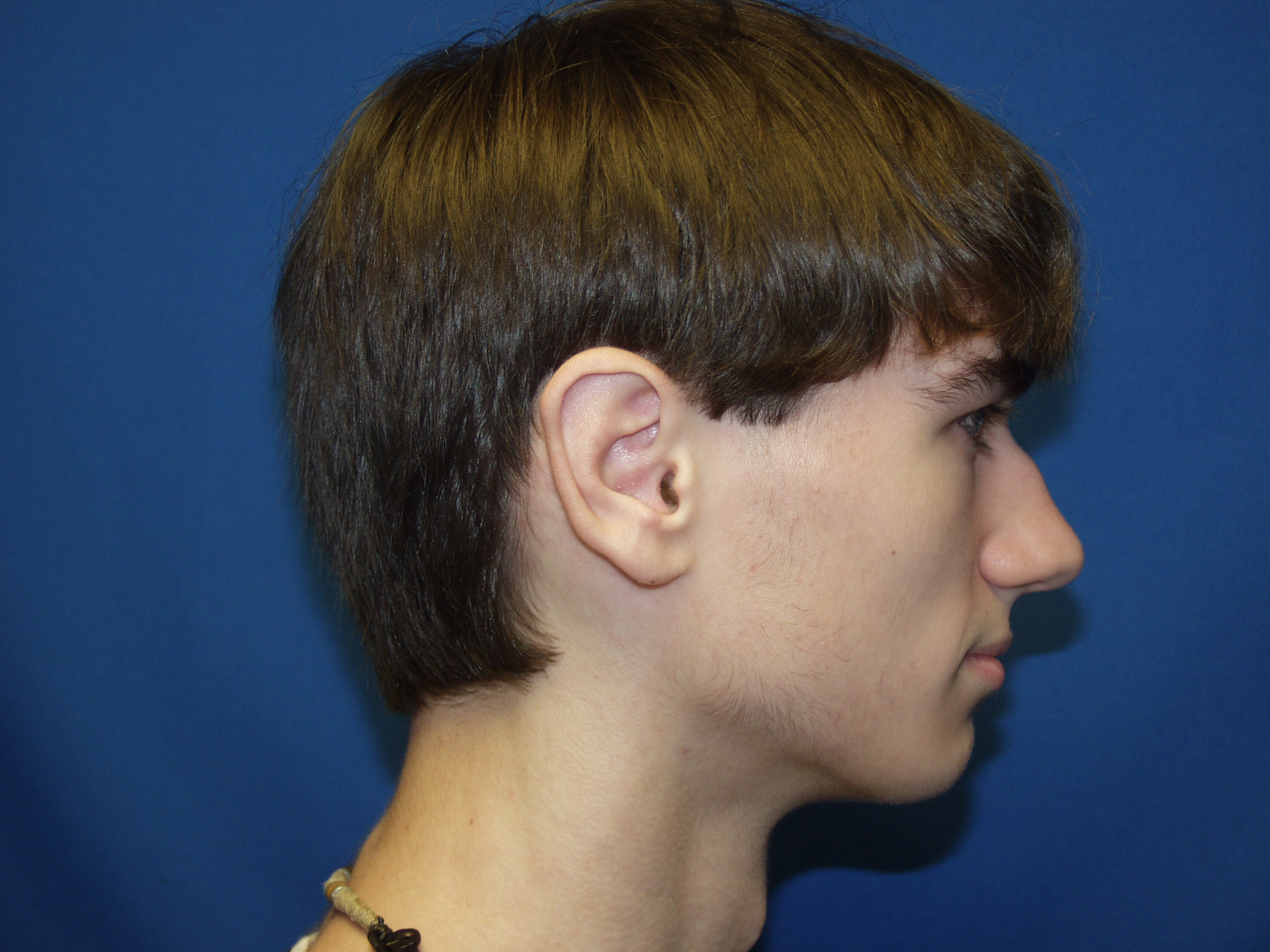Ear Surgery Picture