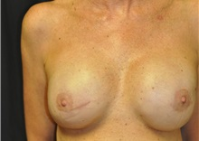 Breast Reconstruction After Photo by Andrew Smith, MD; Irvine, CA - Case 28694