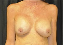Breast Reconstruction Before Photo by Andrew Smith, MD; Irvine, CA - Case 28694