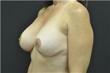 Breast Augmentation After Photo by Andrew Smith, MD; Irvine, CA - Case 28909