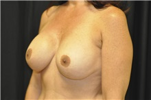 Breast Augmentation Before Photo by Andrew Smith, MD; Irvine, CA - Case 28909