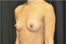 Breast Augmentation Before Photo by Andrew Smith, MD; Irvine, CA - Case 28972
