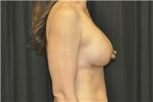 Breast Augmentation After Photo by Andrew Smith, MD; Irvine, CA - Case 29007