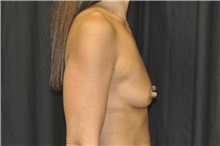 Breast Augmentation Before Photo by Andrew Smith, MD; Irvine, CA - Case 29007