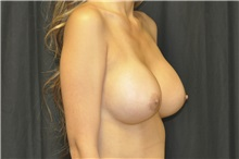 Breast Augmentation After Photo by Andrew Smith, MD; Irvine, CA - Case 29008