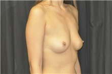 Breast Augmentation Before Photo by Andrew Smith, MD; Irvine, CA - Case 29008