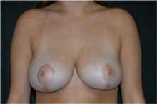 Breast Reduction After Photo by Andrew Smith, MD; Irvine, CA - Case 30780