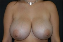 Breast Reduction Before Photo by Andrew Smith, MD; Irvine, CA - Case 30780