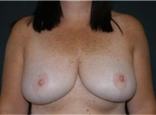 Breast Reduction After Photo by Andrew Smith, MD; Irvine, CA - Case 30781