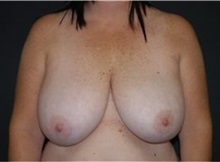 Breast Reduction Before Photo by Andrew Smith, MD; Irvine, CA - Case 30781