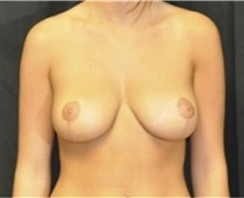 Breast Reduction After Photo by Andrew Smith, MD; Irvine, CA - Case 30782