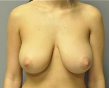 Breast Reduction Before Photo by Andrew Smith, MD; Irvine, CA - Case 30782