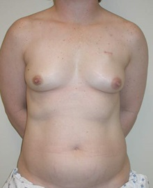 Breast Reconstruction Before Photo by Steven Pisano, MD; San Antonio, TX - Case 30102