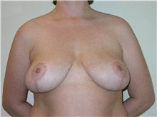 Breast Lift After Photo by Steven Pisano, MD; San Antonio, TX - Case 30111